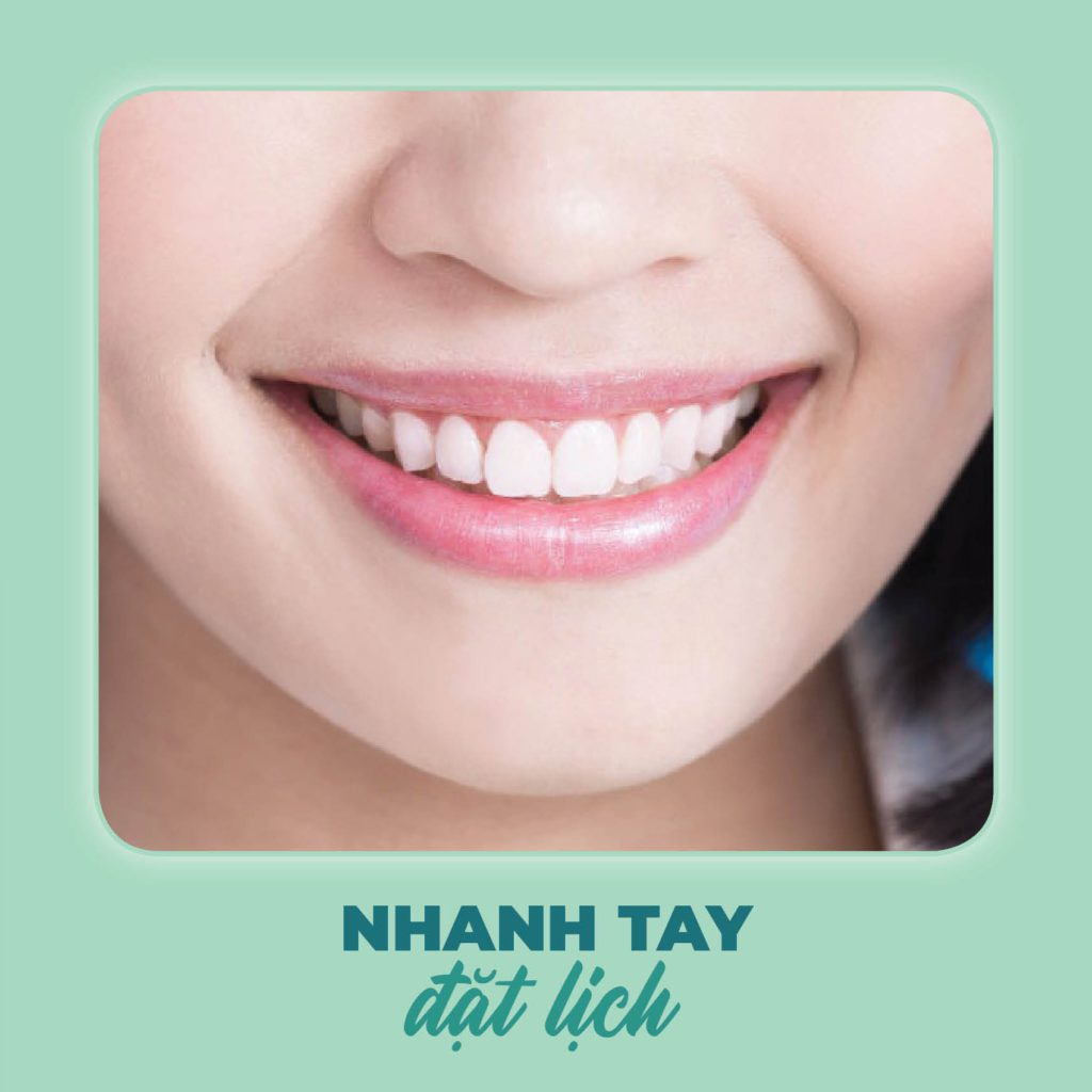 đổi mắc cài sang Invisalign tại nha khoa 360 Dental