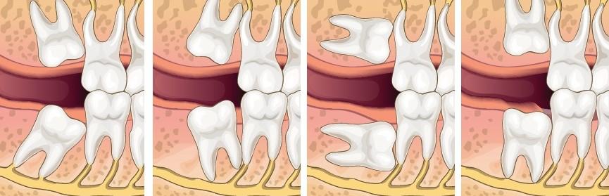 minh họa các kiểu răng khôn mọc nghiêng