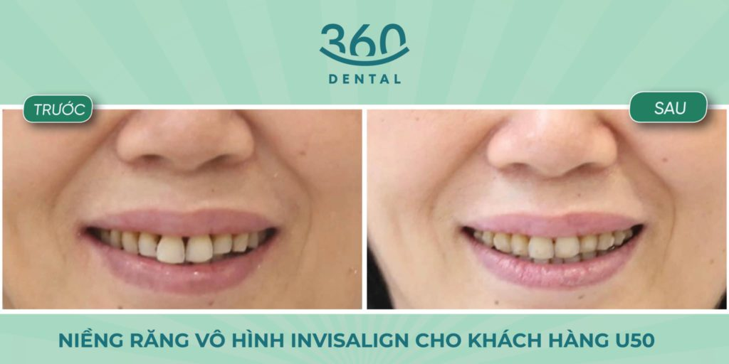 niềng răng invisalign người cao tuổi