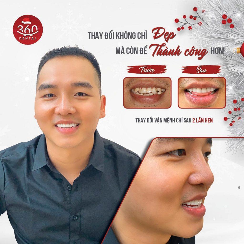 Khách hàng thẩm mỹ răng sứ tại Nha khoa 360 Dental