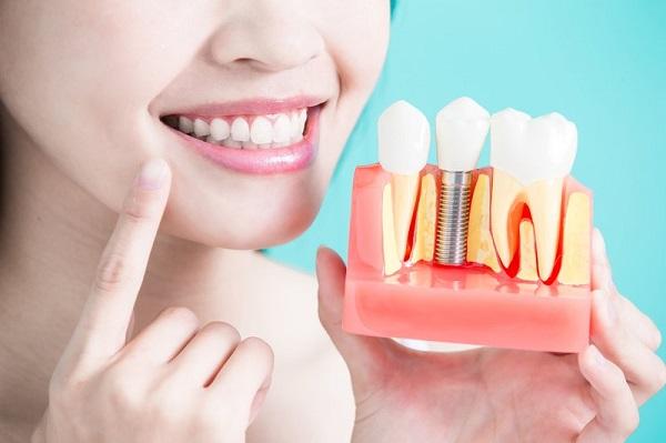 Cấy implant tại Nha khoa 360 Dental