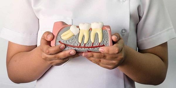 răng khôn là gì có cần thiết nhổ răng khôn