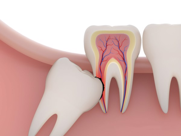 những ai nên nhổ răng khôn răng số 8