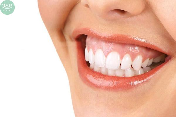 Tiểu phẫu chữa cười hở lợi tại Nha khoa 360 Dental
