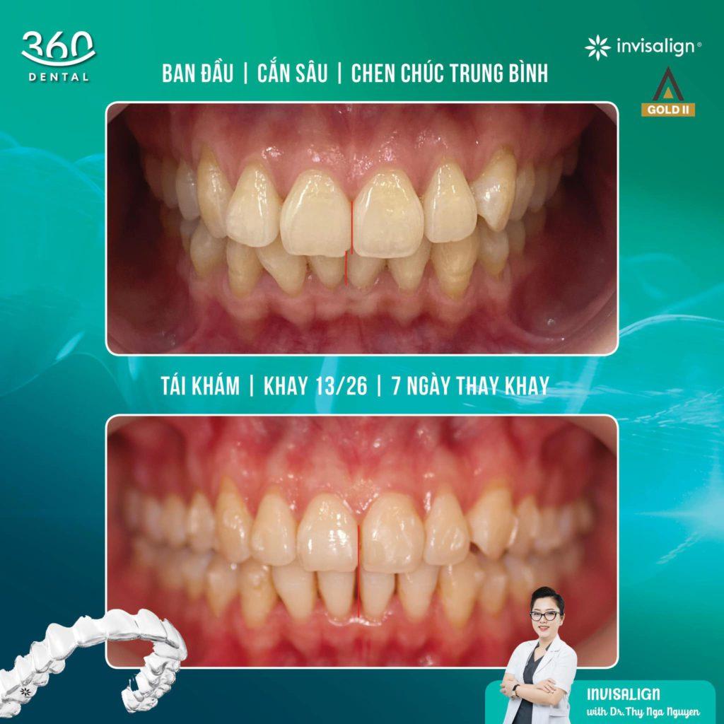 Niềng răng Invisalign tại Nha khoa 360 Dental