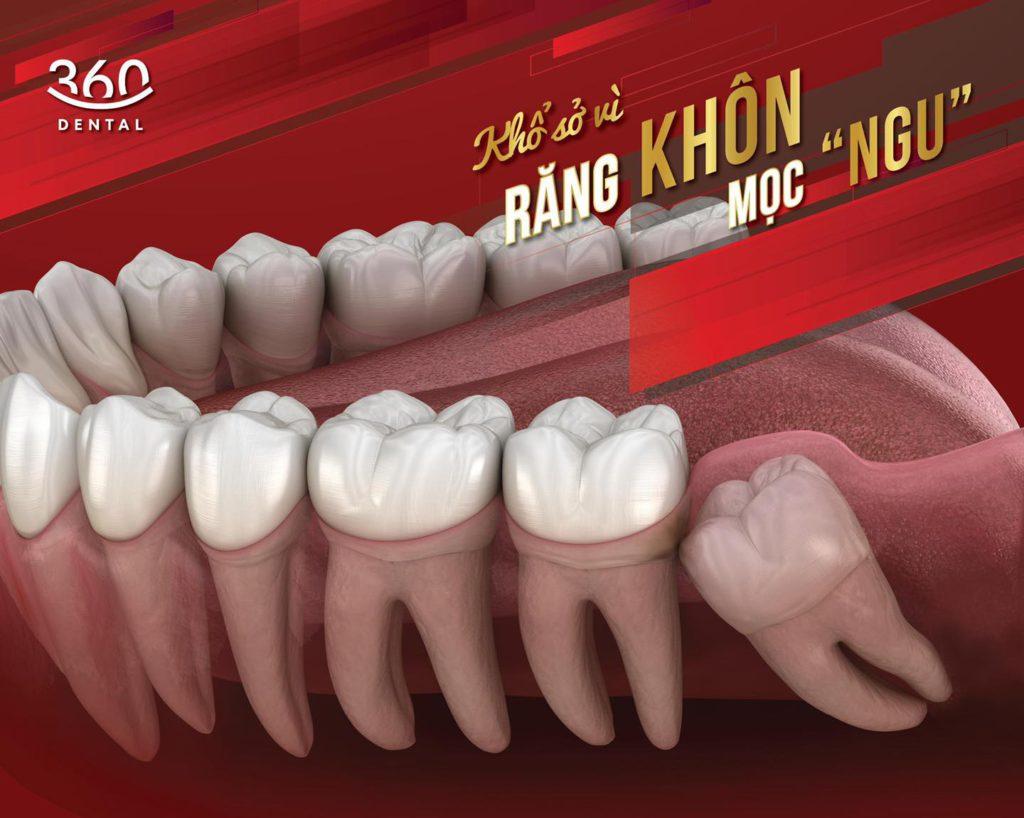 Nhổ răng khôn không đau tại Nha khoa 360 Dental
