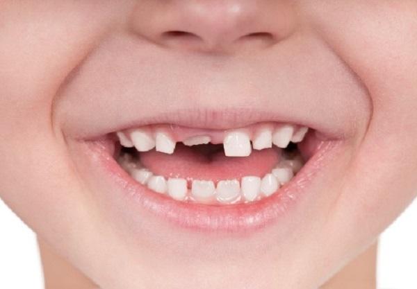 Chữa răng trẻ em tại Nha khoa 360 Dental