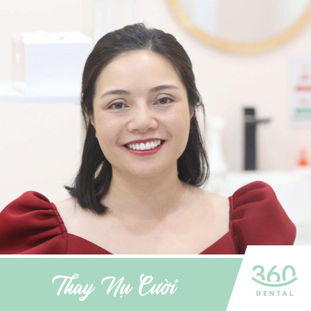 Thẩm mỹ răng sứ tại Nha khoa 360 Dental