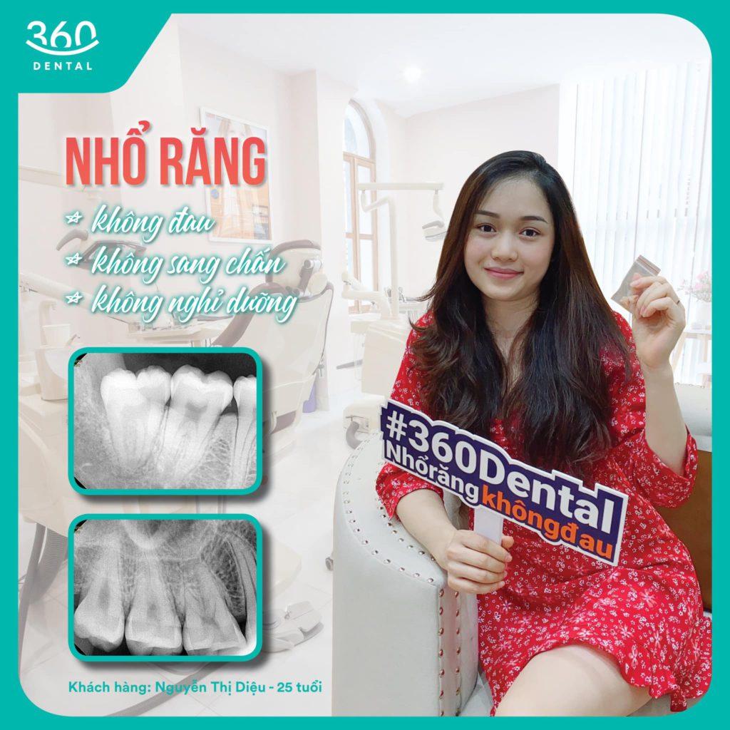 Khách hàng nhổ răng khôn tại Nha khoa 360 Dental