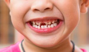 Làm Thế Nào Để Khắc Phục Tình Trạng Sâu Răng Ở Trẻ Em